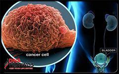 10 loại thực phẩm càng ăn càng càng nuôi ung thư